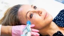 Mesotherapy Lisa Breckenridge Beyond Regenerative